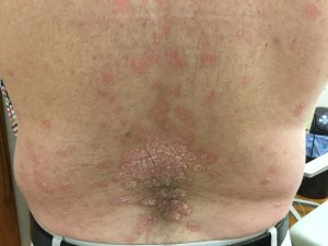 Plaque psoriasis on back of patient at 4 weeks of Skyrizi treatment