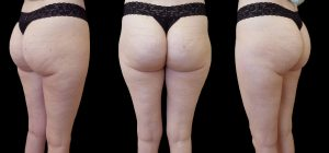 woman's buttock after Cellfina viewed from 3 angles