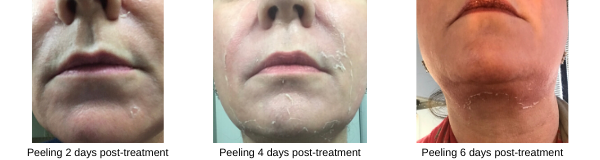 Peeling stages 2, 4 and 6 days post deep Vitalize peel