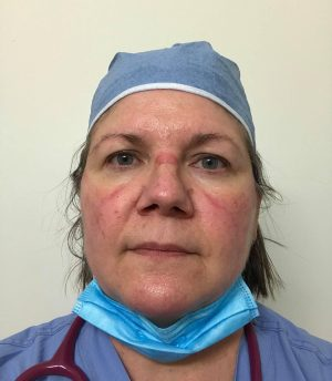 Nurse with facial irritant dermatitis and acne from protective mask