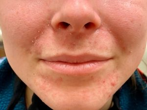 Girl with perioral dermatitis
