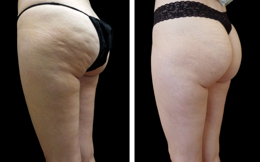Before and after photos of Cellfina cellulite treatment