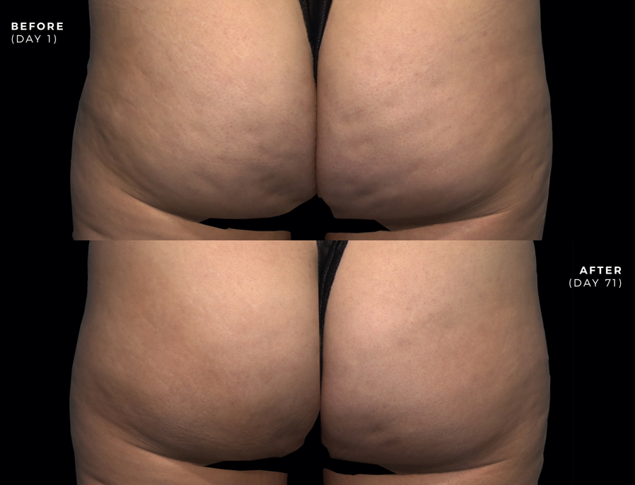 Before and after photos of Qwo cellulite treatment