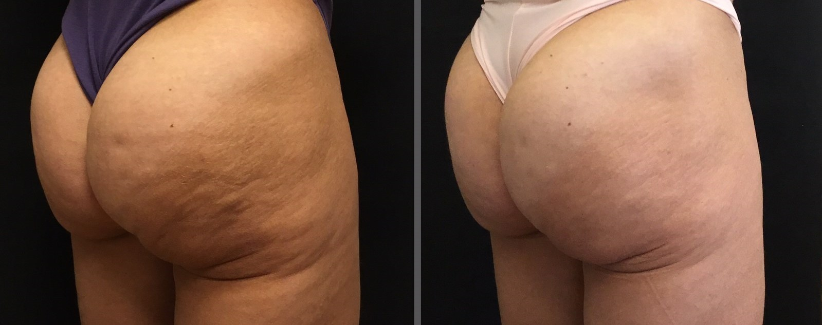 Before and after cellulite treatment with Sculptra filler