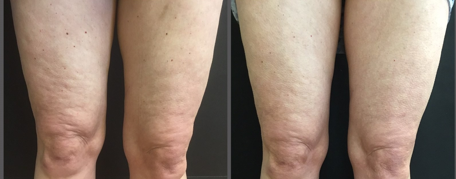 Before and after Sculptra cellulite treatment on the thighs