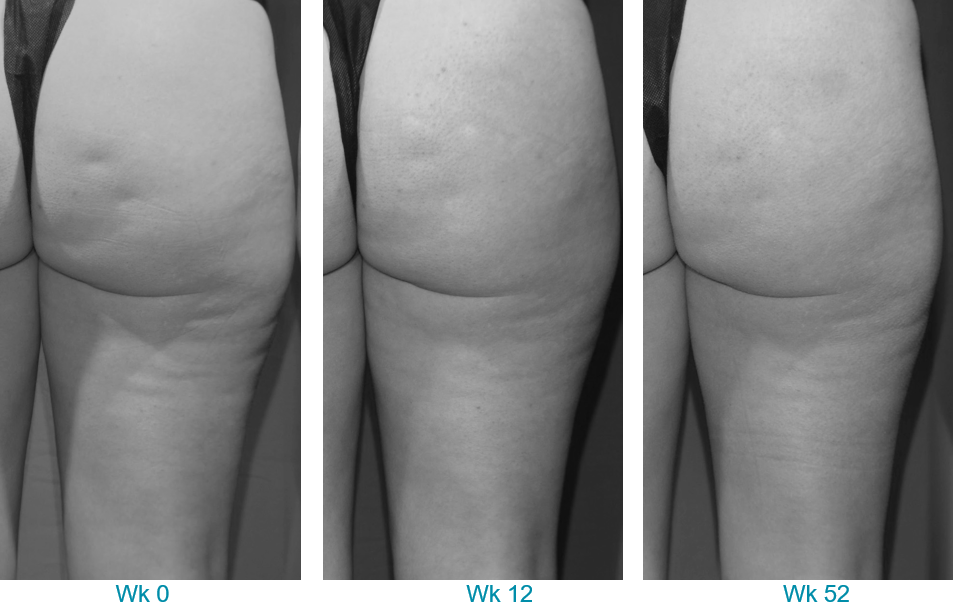 Before and after Soliton cellulite treatment