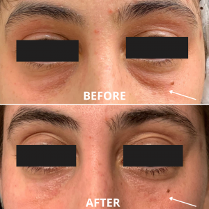 Before and after photos of the under-eye hollow treated with filler