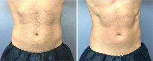 Before and after photos of a man's abdominal muscles stimulated with new device