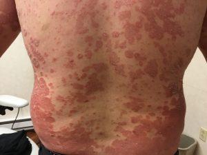 Patient souffrant de psoriasis sur le dos