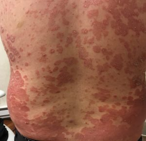 Patient suffering from psoriasis on his back
