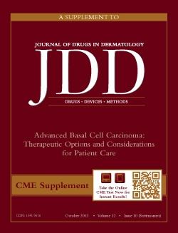 Purpura Treatment in November 2013 issue of JDD