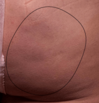6 months after Cellfina cellulite treatment