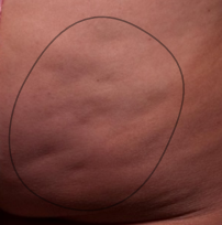 Before Cellfina treatment for cellulite