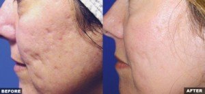 Before and after photos of acne scars treated with Fraxel laser