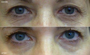 Pelleve: before and after lower eyelid skin tightening