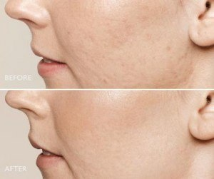 Before and after photos of acne scars treated with Restylane