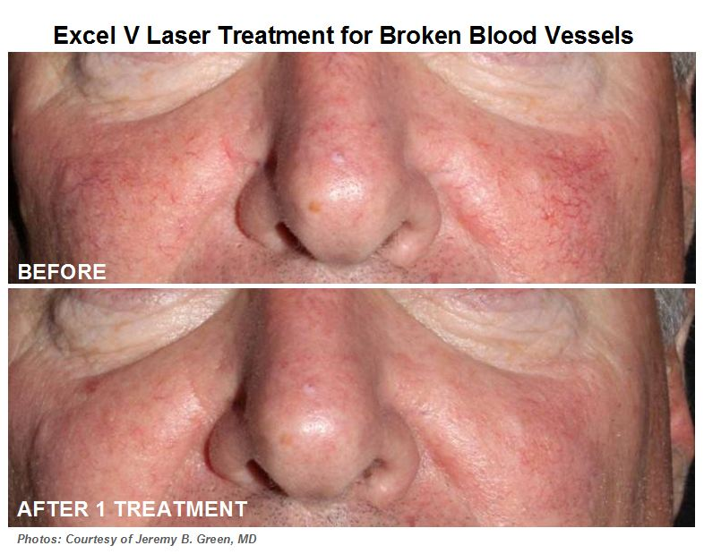 A New Effective Approach To Treating Rosacea Or Facial Redness