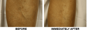 Before-after sclerotherapy treatment on shin vein