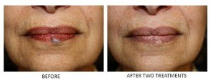 Venous lake before and after two laser treatments