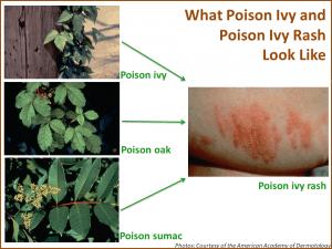 Bad Poison Oak Rash
