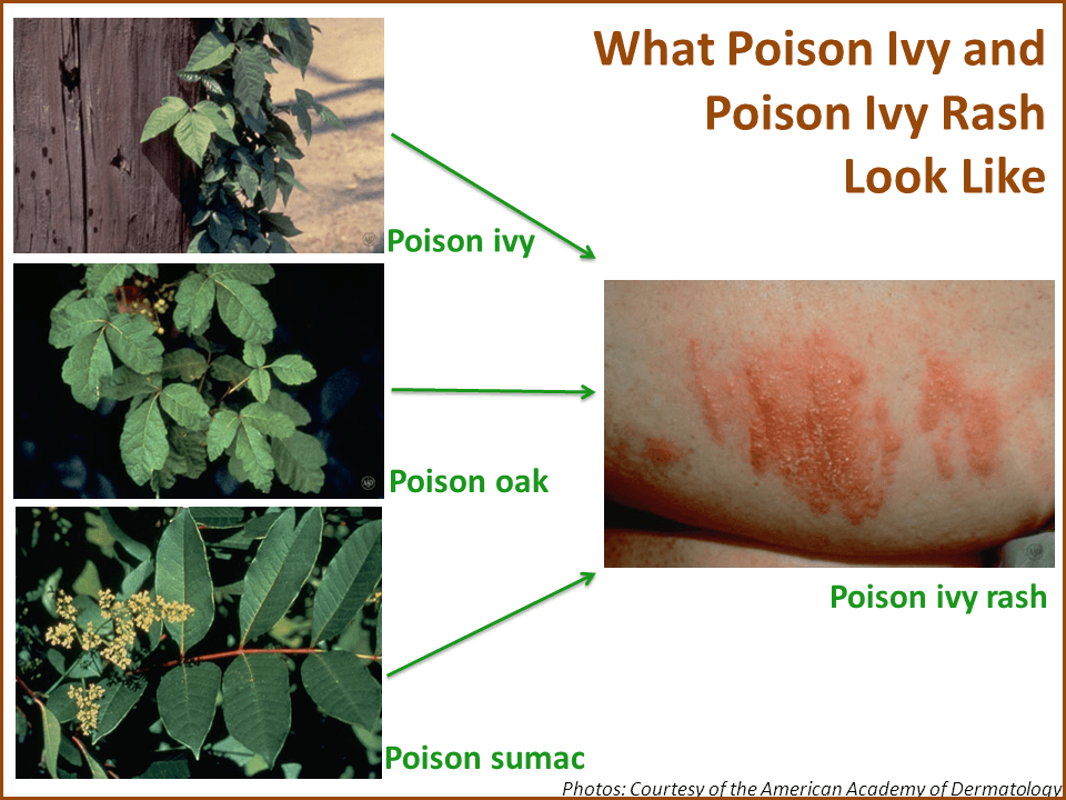 What Poison Ivy and Poison Ivy Rash Look LikePoison Oak Rash Vs Poison Ivy