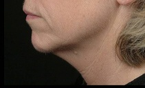 6 months after Thermage radiofrequency treatment