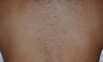 Laser hair removal 5 months after 1 treatment