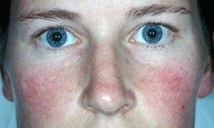 Before pulsed dye laser treatment