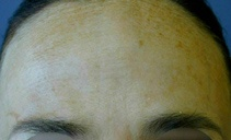 After treatment with botulinum toxin