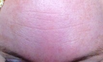 After Melasma treatment
