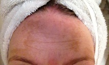 Before melasma treatment of forehead