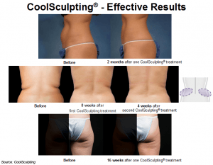 Consistent and effective results with CoolSculpting
