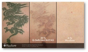 Tattoo removal results using Picosure and Q-Switched Nd:YAG