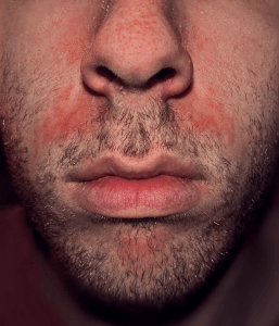 Photo of seborrheric dermatitis above the lips