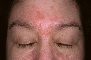Photo of seborrheric dermatitis on forehead