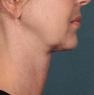 Profile photo after Kybella treatment