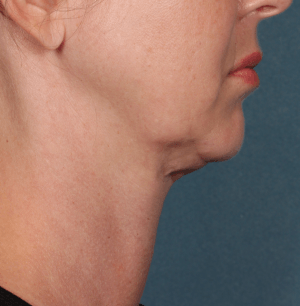 Profile photo before Kybella treatment