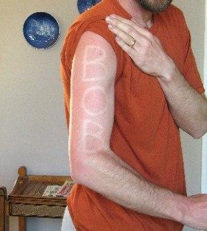 Sunburn on marathon's day