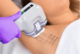 New Hyperhidrosis Treatment 2019